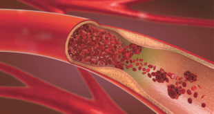Peripheral Vascular Disease A Stealthy Disease Not to Be Ignored