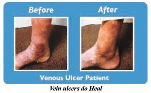 Vein Ulcers