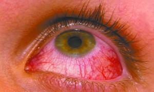 Red Eye vs Pink Eye