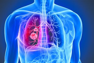 InterCommunity Cancer Center Promotes  Lung Cancer Awareness Month By Recommending  Screening For People At High Risk