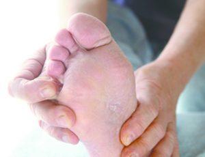 Dry Skin or Athlete's Foot? Diabetic Patients, Beware!