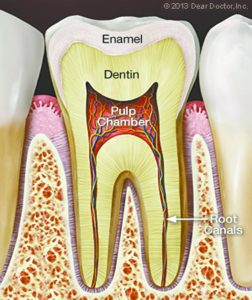 The Process of Root Canals Explained