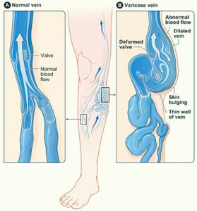 Leg Swelling Causes and Concerns