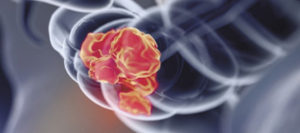 Colorectal Cancer is Preventable, Treatable and Beatable
