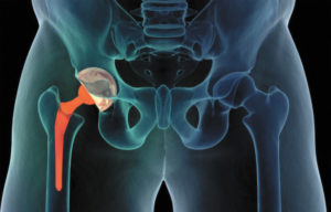 An Advanced Hip Replacement Technique From a Highly-Regarded  Orthopedic Surgeon
