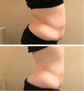 The Strawberry  Inch-Loss Laser:  Your Answer to  Losing Inches