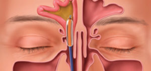 ENT Specialist Dr. Michael Branch's  Approach for Chronic Sinus Infection