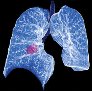 Lung Cancer Awareness Month:  CT Screenings Save Lives