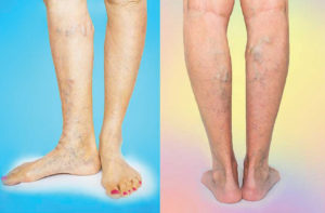 Varicose and Spider Veins Are Not Always Superficial—They Can Pose Significant Health Risks