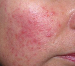 November is National Healthy Skin Month - How to Effectively Treat Rosacea
