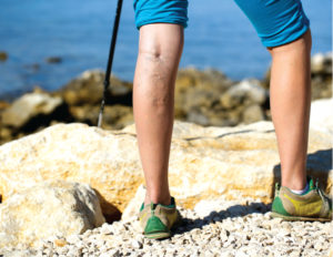 Varicose Veins are a Medical Condition