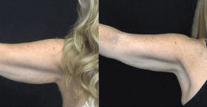 Can Body Sculpting Help You Achieve the  Goals You Want, Just in time for the Holidays?