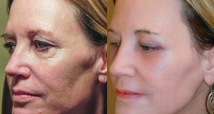 Hyperbaric Oxygen Therapy as an Adjunct to Plastic Surgery