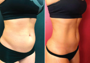 Revolutionary treatment  to build muscle while  shrinking fat