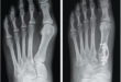 Bunion Corrections