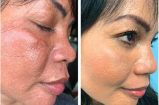WE ARE NOW OFFERING STEM CELL FACIAL RESURFACING TREATMENTS