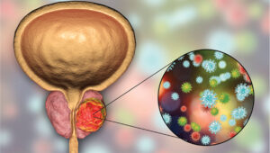 Prostate Cancer and COVID-19