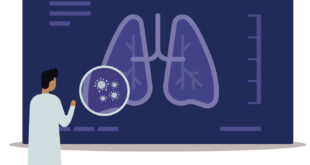 Spotting Lung Cancer Sooner