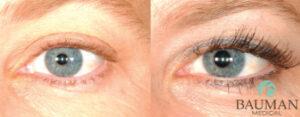 Eyelash Transplants