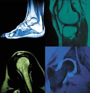 MSK MRI Quick & Accurate