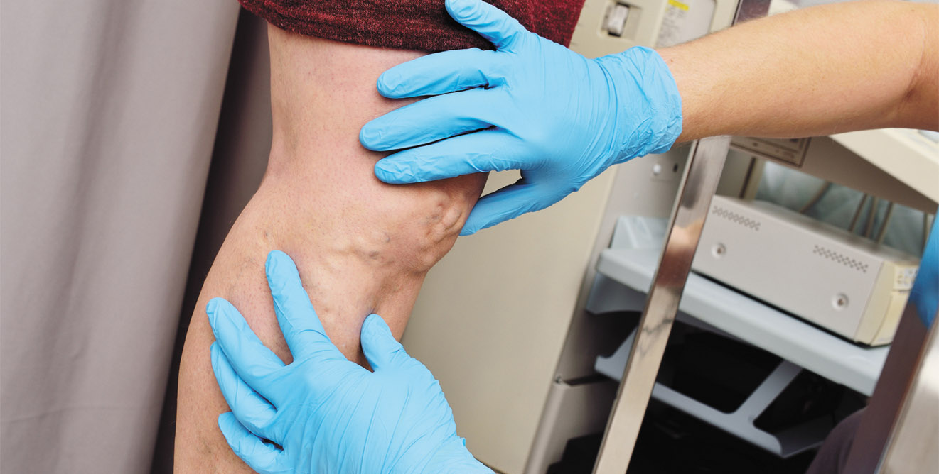 Varicose Veins: More than a Cosmetic Problem